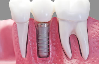 Eight Pro Tips For Highly Effective Dental Implant Marketing